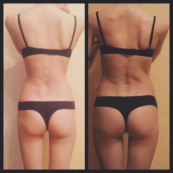 Быстро Похудела Попа Бедра. Эффективные советы и упражнения для похудения бедер и ягодиц