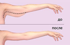Упражнения для рук, чтобы не висела кожа: как подтянуть трицепс